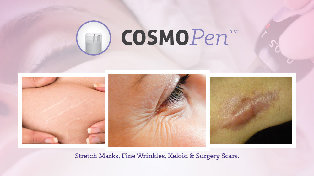 CosmoPen indications